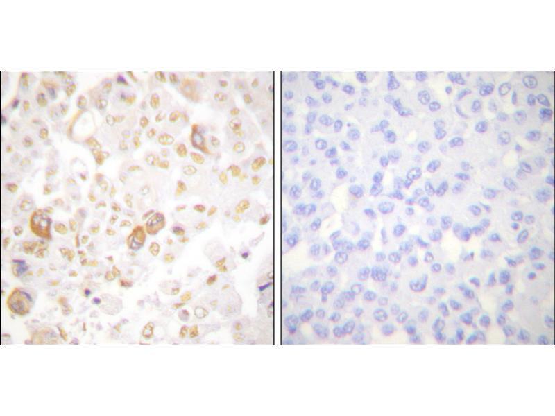 Image no. 2 for anti-Cyclin F (CCNF) antibody (ABIN1575940)