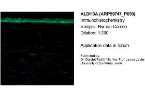 Image no. 2 for anti-Aldehyde Dehydrogenase 3 Family, Member A1 (ALDH3A1) (C-Term) antibody (ABIN2788191)