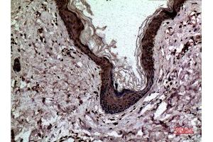 Image no. 5 for anti-Lectin, Galactoside-Binding, Soluble, 3 (LGALS3) (C-Term) antibody (ABIN3187710)