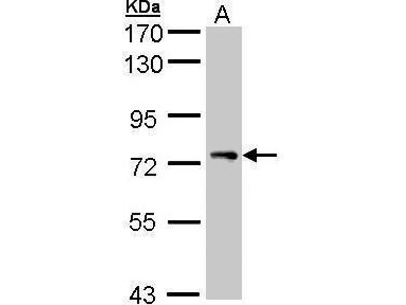 Western Blotting (WB) image for anti-Signal Transducing Adaptor Molecule (SH3 Domain and ITAM Motif) 1 (STAM) (Center) antibody (ABIN2856220)