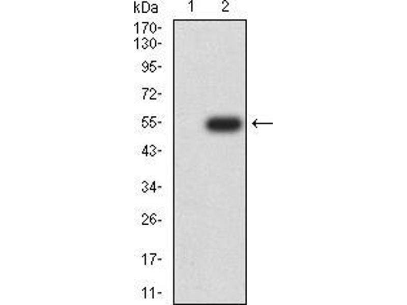 Western Blotting (WB) image for anti-RAN, Member RAS Oncogene Family (RAN) (AA 1-216) antibody (ABIN5542382)