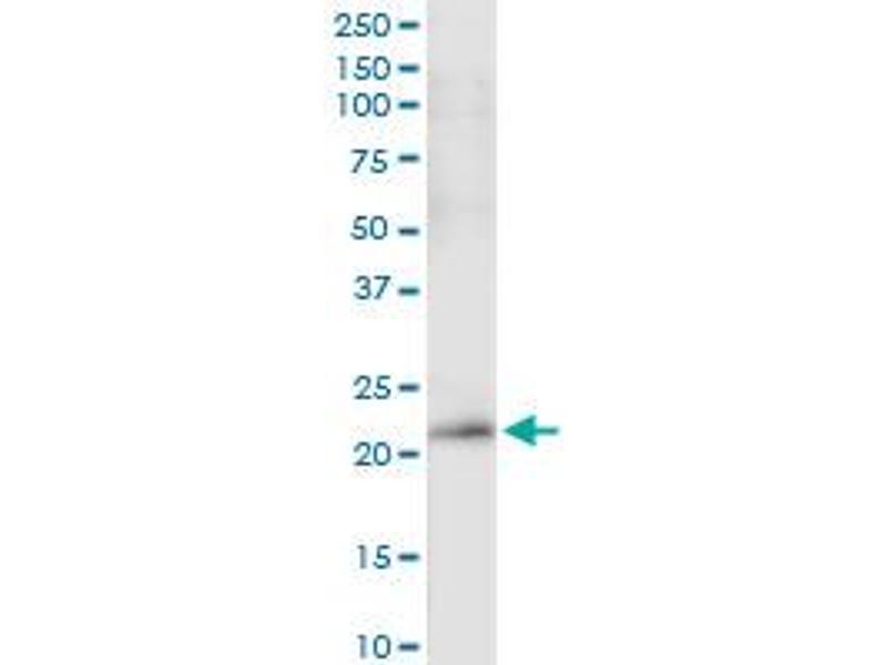 Immunoprecipitation (IP) image for anti-Platelet-Derived Growth Factor alpha Polypeptide (PDGFA) (AA 1-211), (full length) antibody (ABIN518736)