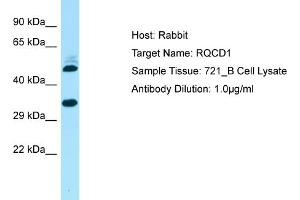 Western Blotting (WB) image for anti-RCD1 Required For Cell Differentiation1 Homolog (S. Pombe) (RQCD1) (Middle Region) antibody (ABIN2790374)
