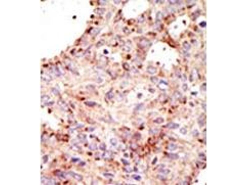 image for anti-ADP-Ribosylation Factor GTPase Activating Protein 1 (ARFGAP1) (C-Term) antibody (ABIN357645)