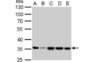 Image no. 3 for anti-Lactate Dehydrogenase A (LDHA) (Center) antibody (ABIN2855034)