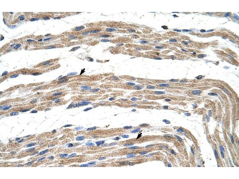 Immunohistochemistry (IHC) image for anti-Zinc Finger Protein 197 (ZNF197) (N-Term) antibody (ABIN183729)