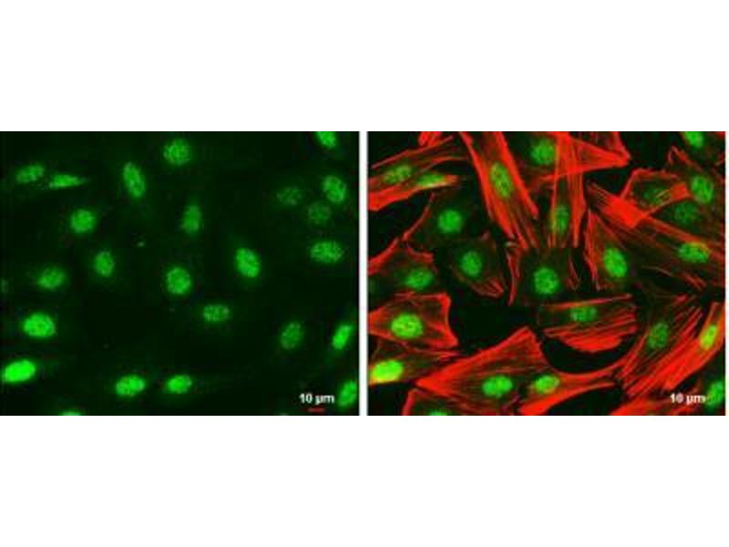 Immunofluorescence (IF) image for anti-Paired Box 6 (PAX6) (Center) antibody (ABIN4343835)
