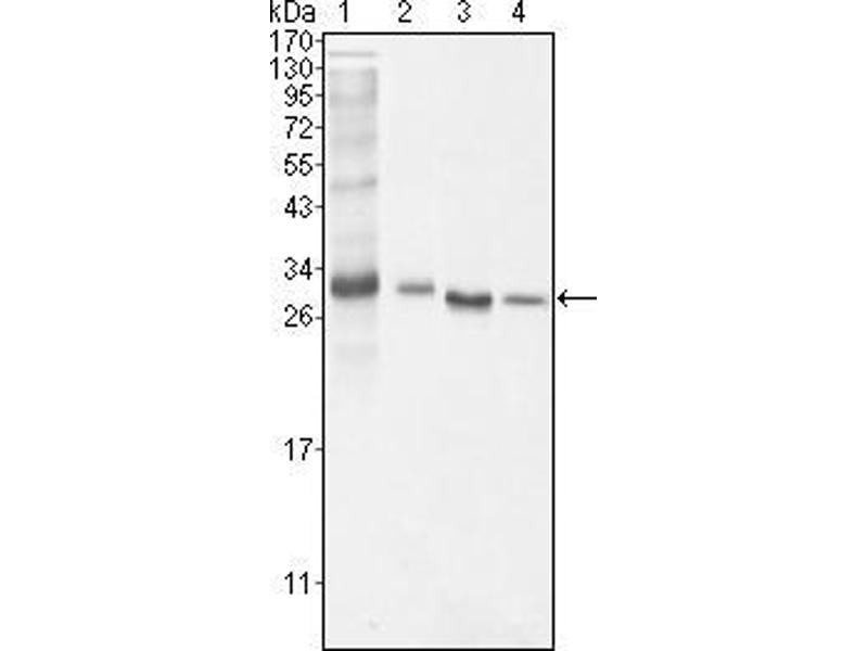 Western Blotting (WB) image for anti-BCL10 antibody (B-Cell CLL/lymphoma 10) (ABIN1724629)