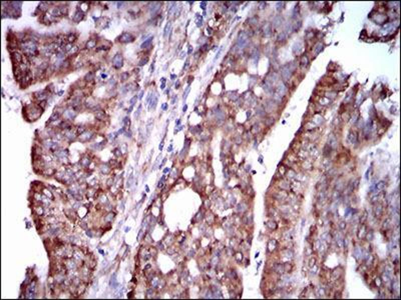 Immunohistochemistry (IHC) image for anti-Signal Transducer and Activator of Transcription 5A (STAT5A) (AA 583-794) antibody (ABIN1098129)