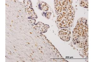 Image no. 2 for anti-Testis-Specific Kinase 2 (TESK2) (AA 405-542) antibody (ABIN564530)