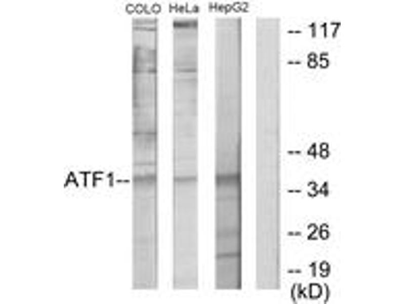 Western Blotting (WB) image for anti-Activating Transcription Factor 1 (AFT1) (AA 176-225) antibody (ABIN1533644)