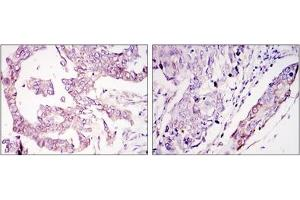Immunohistochemistry (IHC) image for anti-WIF1 antibody (WNT Inhibitory Factor 1) (ABIN1109510)
