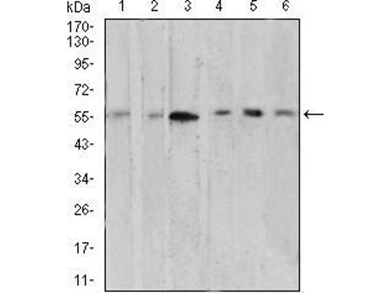 Western Blotting (WB) image for anti-V-Akt Murine Thymoma Viral Oncogene Homolog 1 (AKT1) (AA 1-150) antibody (ABIN5542264)