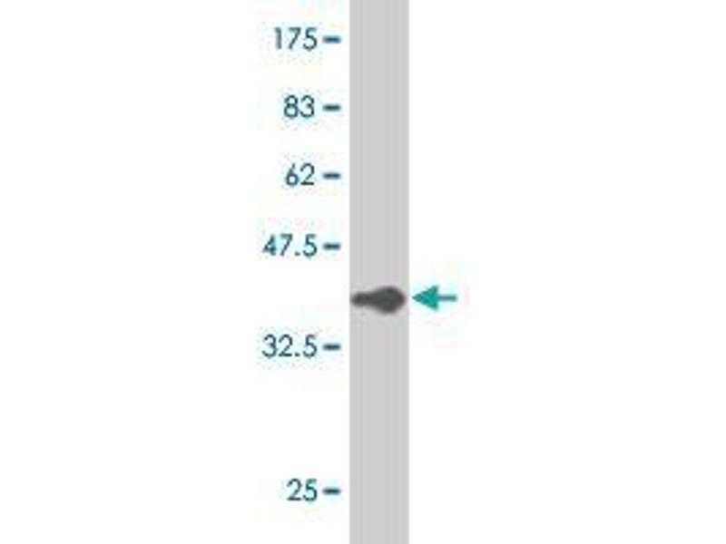 Western Blotting (WB) image for anti-Vav 1 Oncogene (VAV1) (AA 681-791) antibody (ABIN394203)