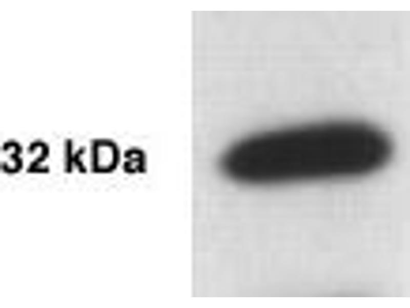 Western Blotting (WB) image for anti-Kallikrein 5 (KLK5) antibody (ABIN152281)