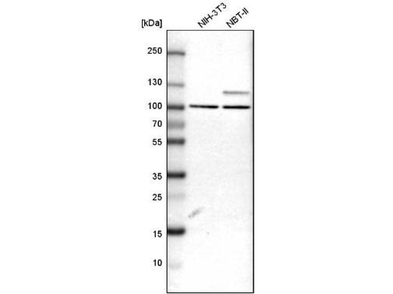 Western Blotting (WB) image for anti-rho GTPase Activating Protein 12 (ARHGAP12) antibody (ABIN4281494)