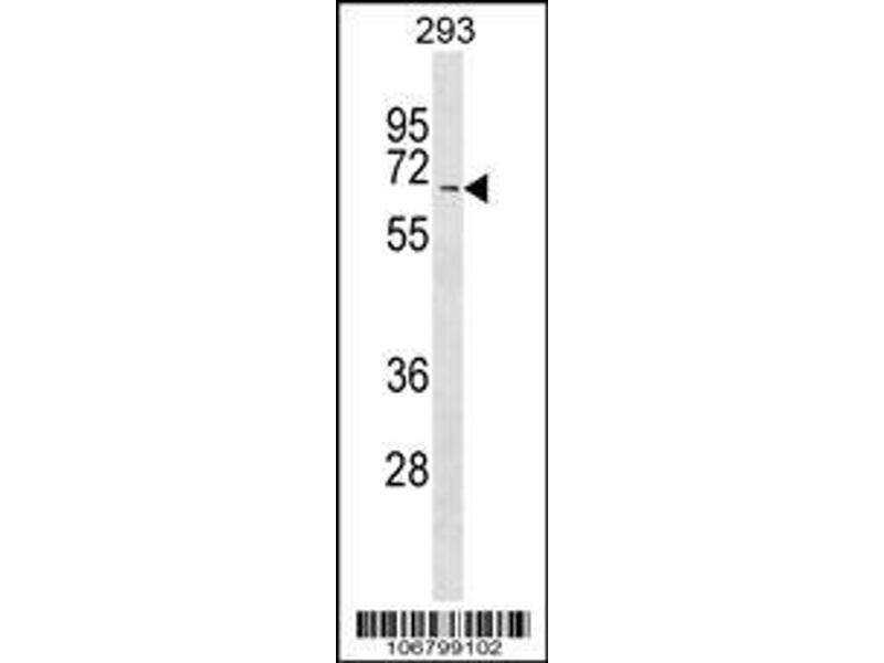 Western Blotting (WB) image for anti-Myeloid/lymphoid Or Mixed-Lineage Leukemia (Trithorax Homolog, Drosophila), Translocated To, 3 (MLLT3) (AA 407-438), (Center), (Val422) antibody (ABIN390129)