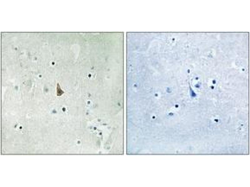 Immunohistochemistry (IHC) image for anti-NTRK3 antibody (Neurotrophic tyrosine Kinase, Receptor, Type 3) (pTyr516) (ABIN1532084)