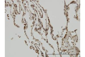 Immunostaining (ISt) image for anti-Nuclear Factor of kappa Light Polypeptide Gene Enhancer in B-Cells Inhibitor, beta (NFKBIB) (AA 56-145), (partial) antibody (ABIN561984)