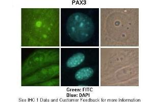 Image no. 1 for anti-Paired Box 3 (PAX3) (C-Term) antibody (ABIN2777556)