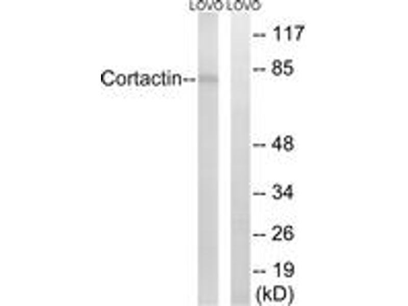 Western Blotting (WB) image for anti-Cortactin (CTTN) (AA 441-490) antibody (ABIN1532839)