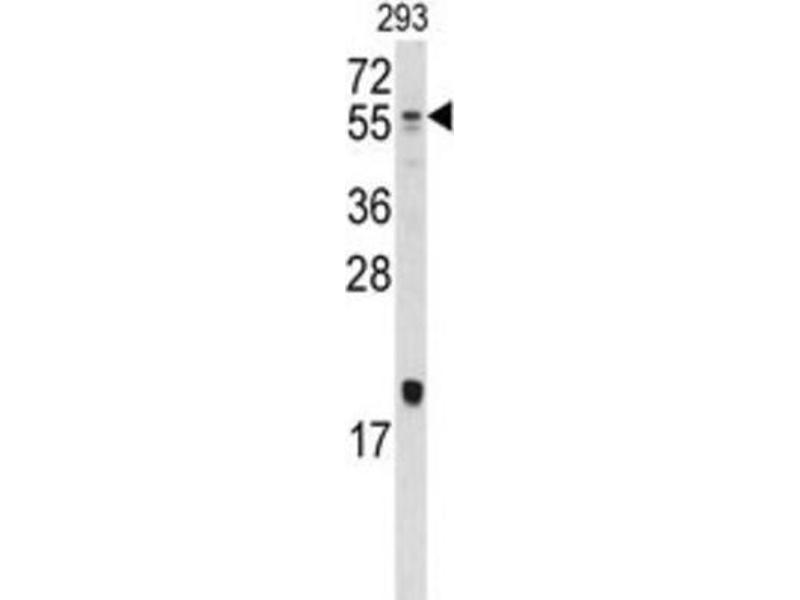 Western Blotting (WB) image for anti-Bone Morphogenetic Protein 10 (BMP10) antibody (ABIN2999217)