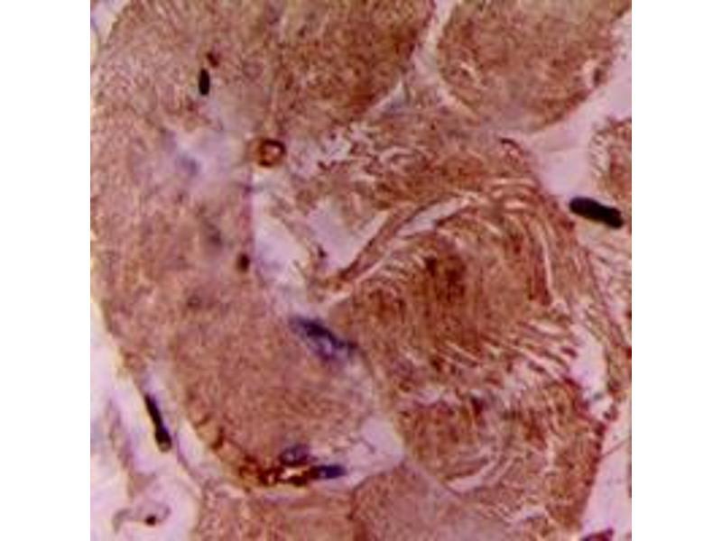 Image no. 2 for anti-Troponin I Type 3 (Cardiac) (TNNI3) (N-Term) antibody (ABIN2707455)