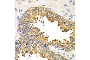 Immunohistochemistry (Paraffin-embedded Sections) (IHC (p)) image for anti-DEAD (Asp-Glu-Ala-Asp) Box Polypeptide 58 (DDX58) antibody (ABIN3023649)