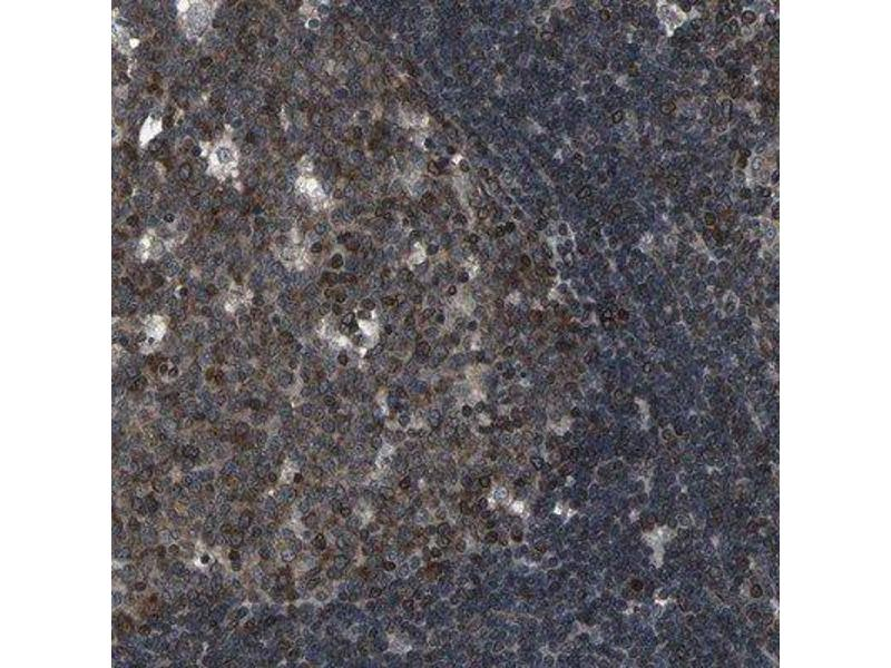 Immunohistochemistry (Paraffin-embedded Sections) (IHC (p)) image for anti-SH2B3 antibody (SH2B Adaptor Protein 3) (ABIN4331277)