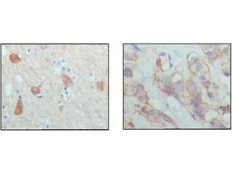 Immunohistochemistry (IHC) image for anti-PAWR antibody (PRKC, Apoptosis, WT1, Regulator) (ABIN1108571)