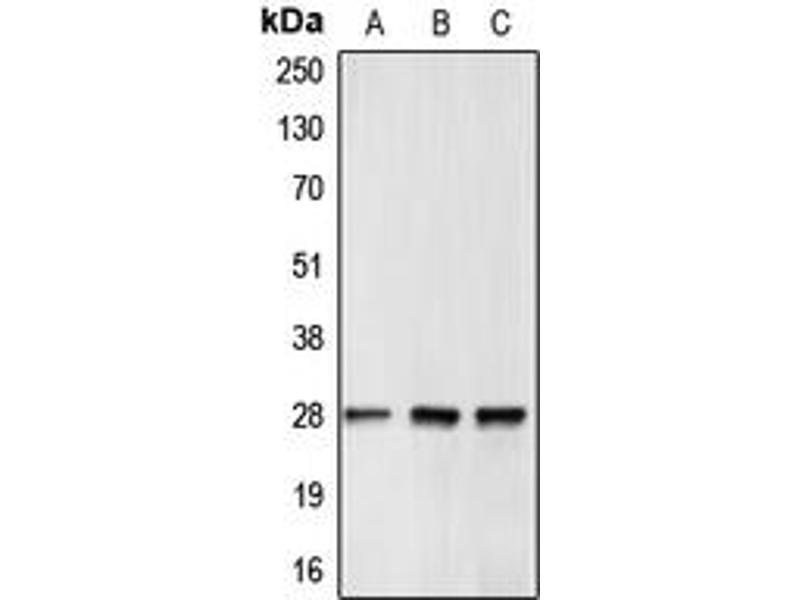 Western Blotting (WB) image for anti-B-Cell CLL/lymphoma 2 (BCL2) (Center) antibody (ABIN2705575)