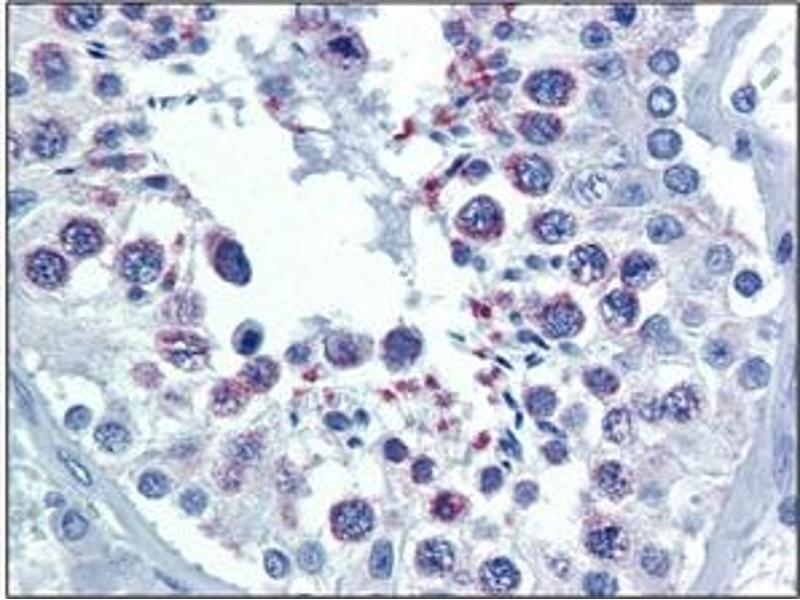 Immunohistochemistry (IHC) image for anti-Second Mitochondria-Derived Activator of Caspase (DIABLO) antibody (ABIN492563)