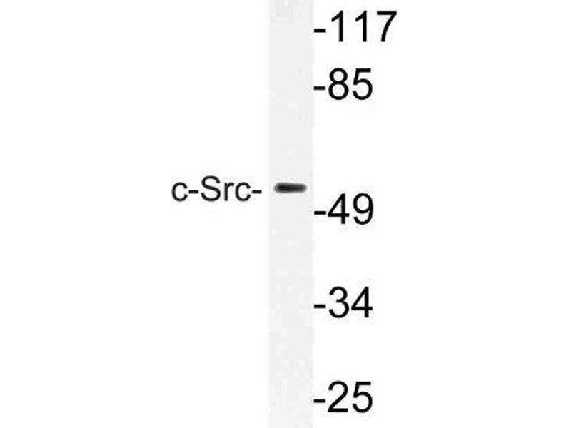 Western Blotting (WB) image for anti-SRC antibody (V-Src Sarcoma (Schmidt-Ruppin A-2) Viral Oncogene Homolog (Avian)) (ABIN4355873)