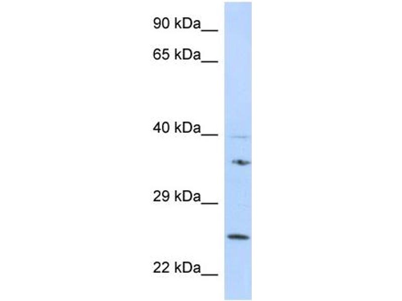 Western Blotting (WB) image for anti-Growth Factor Receptor-Bound Protein 2 (GRB2) (N-Term) antibody (ABIN2787701)