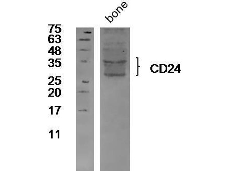 Western Blotting (WB) image for anti-CD24 Molecule (CD24) (AA 20-60) antibody (ABIN1385285)