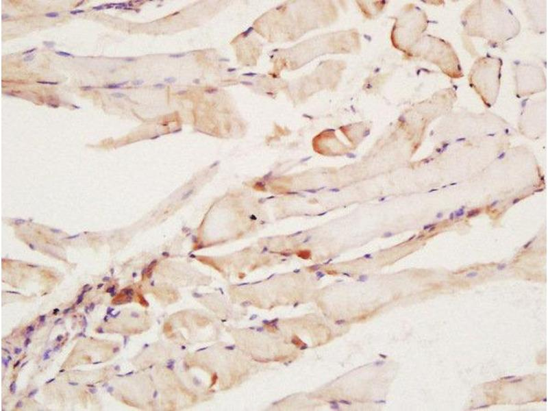 Immunohistochemistry (Paraffin-embedded Sections) (IHC (p)) image for anti-Ciliary Neurotrophic Factor Receptor (CNTFR) (AA 160-210) antibody (ABIN687637)