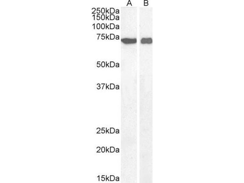 Western Blotting (WB) image for anti-Apoptosis-Inducing Factor, Mitochondrion-Associated, 1 (AIFM1) antibody (ABIN2560986)
