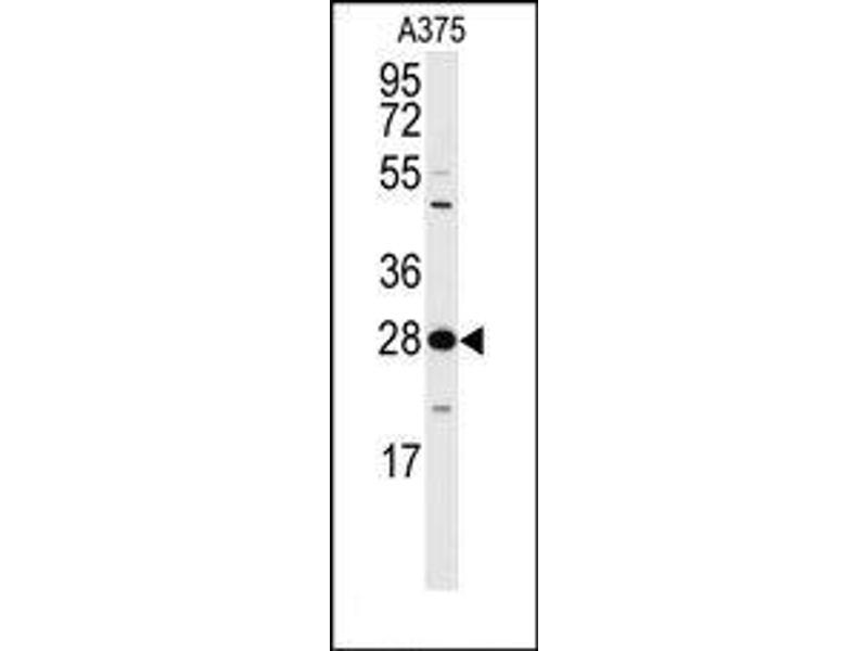 image for anti-YWHAZ antibody (tyrosine 3-Monooxygenase/tryptophan 5-Monooxygenase Activation Protein, zeta Polypeptide) (Thr232) (ABIN360667)