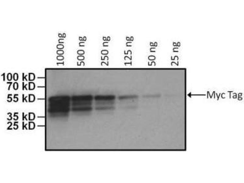 Western Blotting (WB) image for anti-V-Myc Myelocytomatosis Viral Oncogene Homolog (Avian) (MYC) antibody (ABIN4285695)