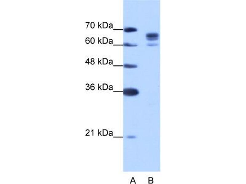 Western Blotting (WB) image for anti-DEAD (Asp-Glu-Ala-Asp) Box Polypeptide 17 (DDX17) (N-Term) antibody (ABIN184065)