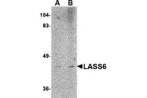 Image no. 2 for anti-Ceramide Synthase 6 (CERS6) (N-Term) antibody (ABIN1031437)