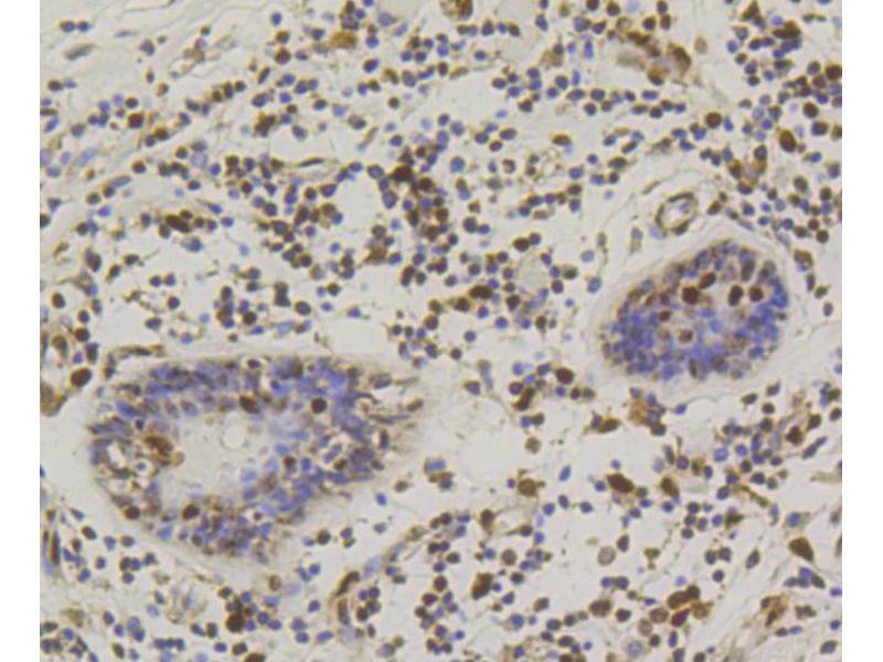 Immunohistochemistry (IHC) image for anti-cAMP Responsive Element Binding Protein 1 (CREB1) antibody (ABIN4903372)