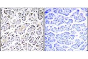 Immunohistochemistry (IHC) image for anti-ATP Synthase, H+ Transporting, Mitochondrial Fo Complex, Subunit C3 (Subunit 9) (ATP5G3) antibody (ABIN1534664)