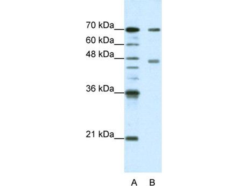 Western Blotting (WB) image for anti-Poly(A) Binding Protein, Cytoplasmic 4 (Inducible Form) (PABPC4) (N-Term) antibody (ABIN183968)