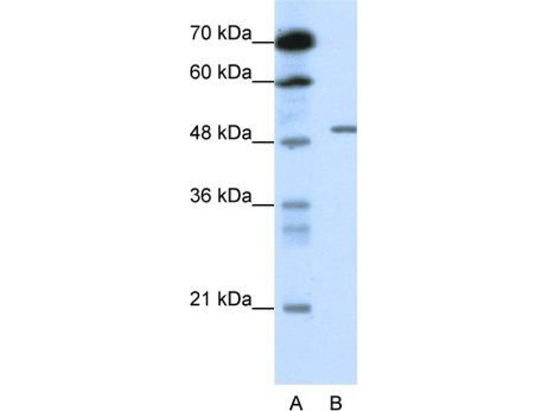 Western Blotting (WB) image for anti-gamma-aminobutyric Acid (GABA) A Receptor, beta 2 (GABRB2) (N-Term) antibody (ABIN2776116)