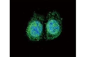 Image no. 2 for anti-B-Cell CLL/lymphoma 2 (BCL2) (AA 75-110) antibody (ABIN3030102)