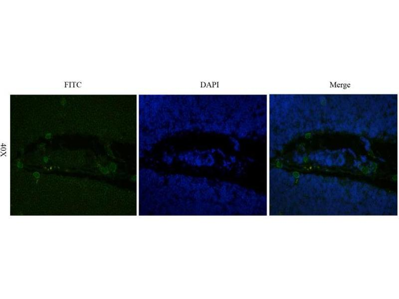Immunofluorescence (IF) image for anti-Interleukin 2 Receptor, alpha (IL2RA) antibody (ABIN5668050)