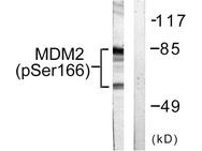 Western Blotting (WB) image for anti-MDM2 Antikörper (Mdm2, p53 E3 Ubiquitin Protein Ligase Homolog (Mouse)) (pSer166) (ABIN1531340)