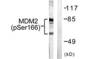 Western Blotting (WB) image for anti-Mdm2, p53 E3 Ubiquitin Protein Ligase Homolog (Mouse) (MDM2) (AA 132-181), (pSer166) antibody (ABIN1531340)