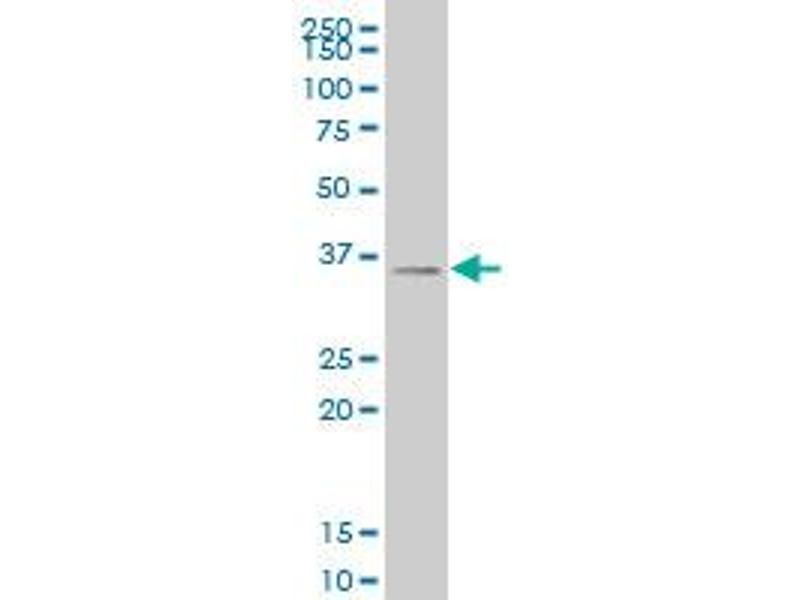 Western Blotting (WB) image for anti-Sine Oculis-Related Homeobox 3 (SIX3) (AA 273-332) antibody (ABIN520206)